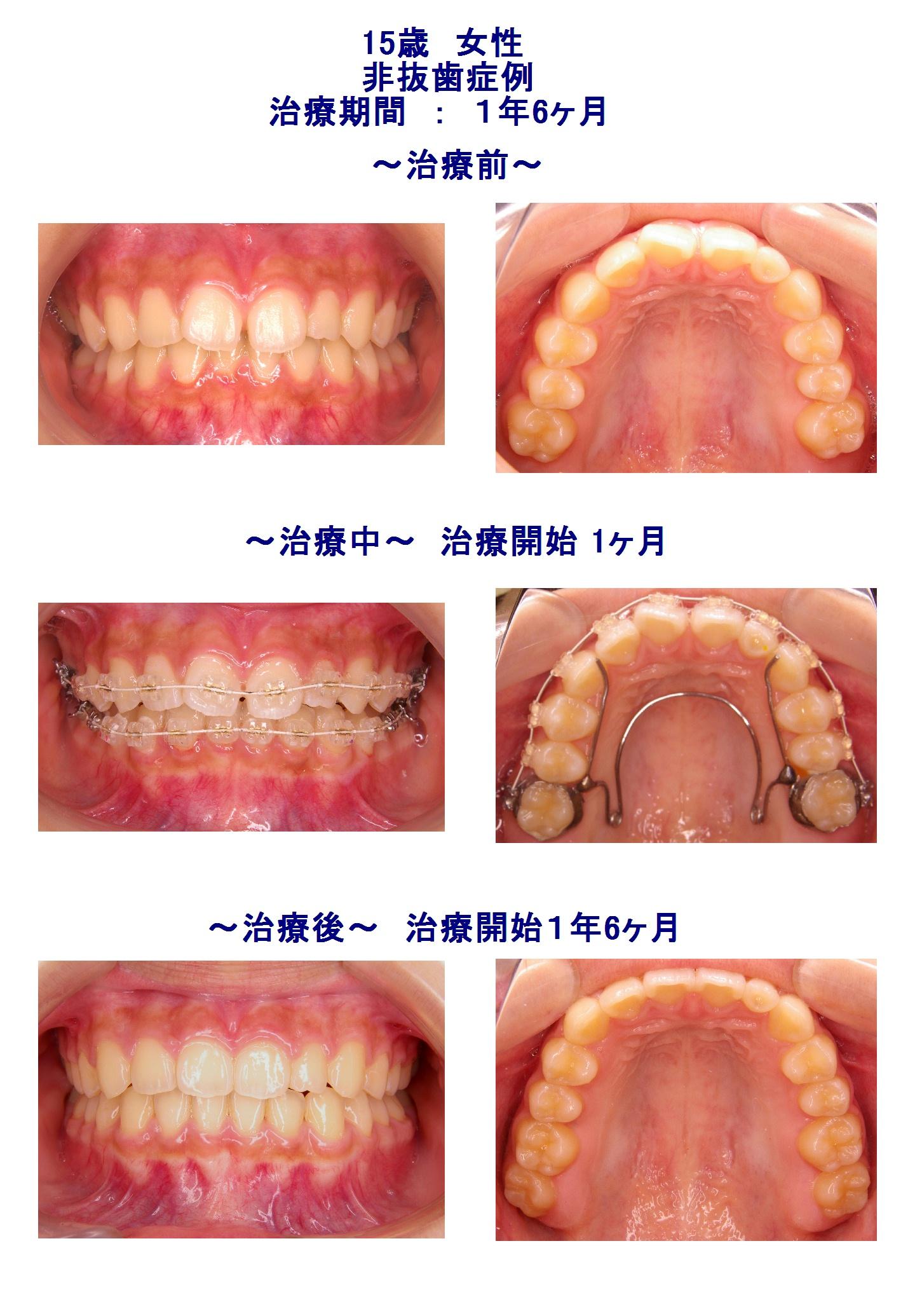 前歯のすき間(非抜歯症例)