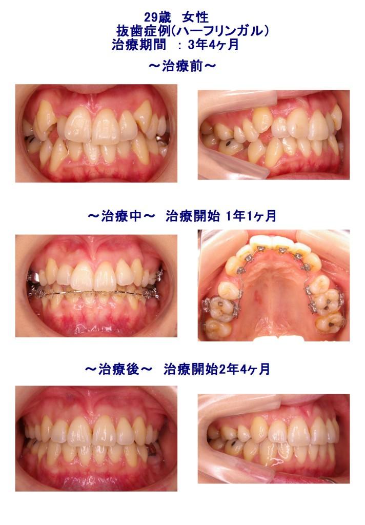八重歯+裏側矯正