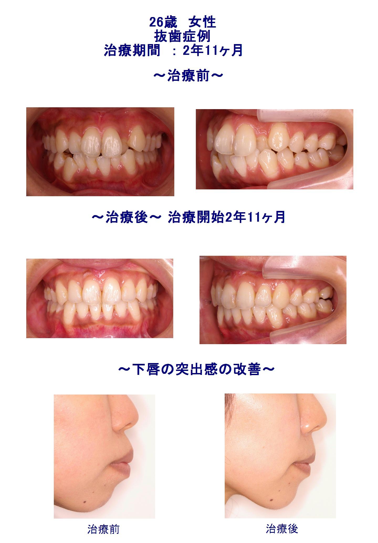 前歯のデコボコ